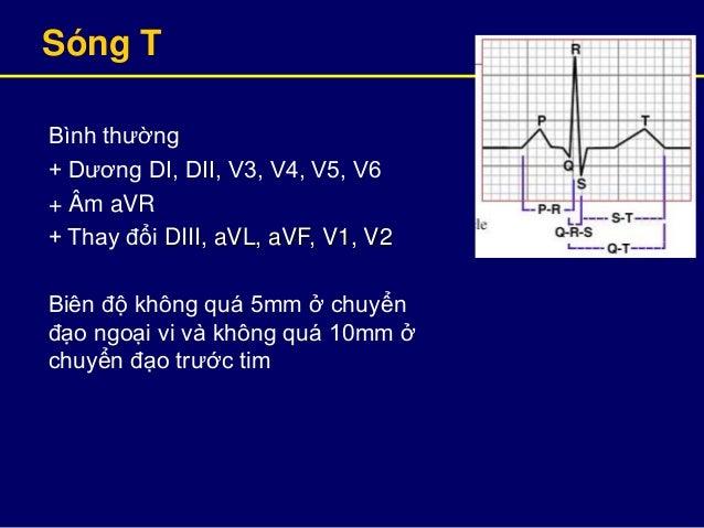 Sóng T Bình thường + Dương DI, DII, V3, V4, V5, V6 + Âm aVR + Thay đổi DIII, aVL, aVF, V1, V2 Biên độ không quá 5mm ở chuy...