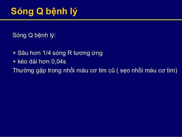 Sóng Q bệnh lý Sóng Q bệnh lý: + Sâu hơn 1/4 sóng R tương ứng + kéo dài hơn 0,04s Thường gặp trong nhồi máu cơ tim cũ ( sẹ...