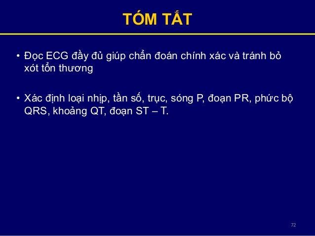 72 TÓM TẮT • Đọc ECG đầy đủ giúp chẩn đoán chính xác và tránh bỏ xót tổn thương • Xác định loại nhịp, tần số, trục, sóng P...
