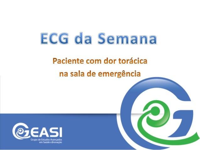 ECG 2