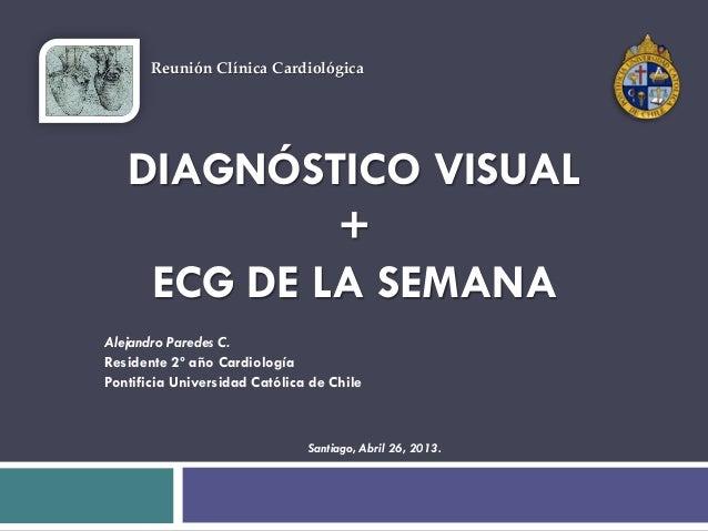 DIAGNÓSTICO VISUAL+ECG DE LA SEMANAAlejandro Paredes C.Residente 2º año CardiologíaPontificia Universidad Católica de Chil...
