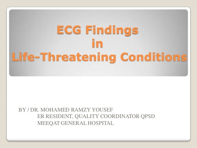 ECG Findings in Life-Threatening Conditions  BY / DR. MOHAMED RAMZY YOUSEF ER RESIDENT, QUALITY COORDINATOR QPSD MEEQAT GE...