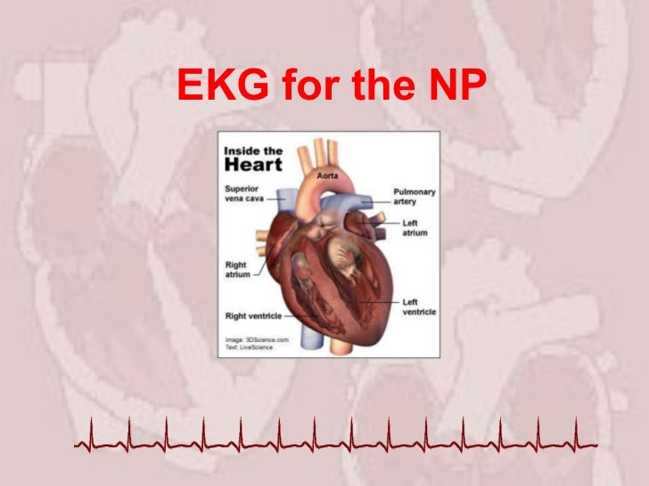 EKG for the NP