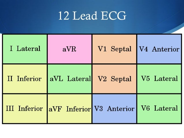Principles of ECG Interpretation