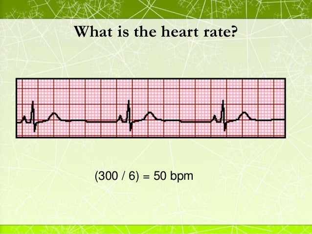 fundamentals of rhythms The aim of this comprehensive course on rhythms is to provide the healthcare professional with an introduction to ecg rhythms sinus, junctional, ventricular, and heart block rhythms are.
