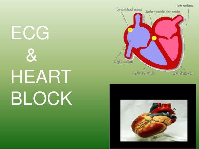 ECG & HEART BLOCK