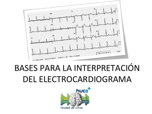 BASES PARA LA INTERPRETACIÓN  DEL ELECTROCARDIOGRAMA