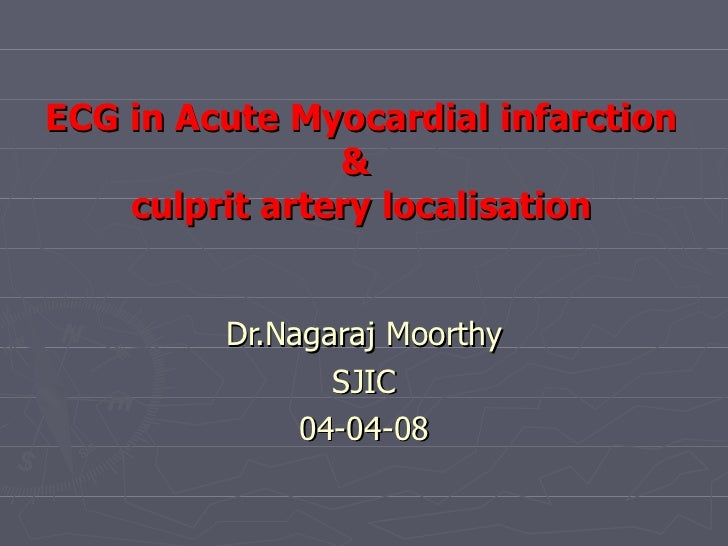 ECG in Acute Myocardial infarction &  culprit artery localisation Dr.Nagaraj Moorthy SJIC 04-04-08