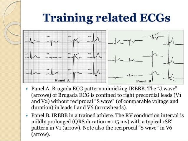 Ecg In Athletes And Young Age Custom Ecg Pattern