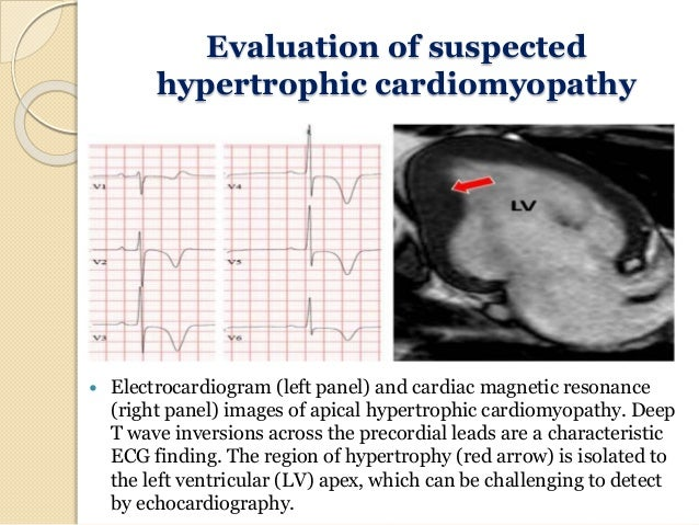 Ecg In Athletes And Young Age