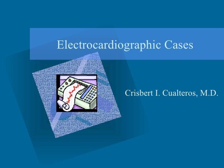 Electrocardiographic Cases Crisbert I. Cualteros, M.D.