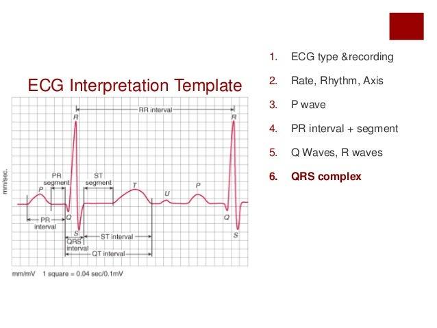 Ecg rhythm strip interpretation