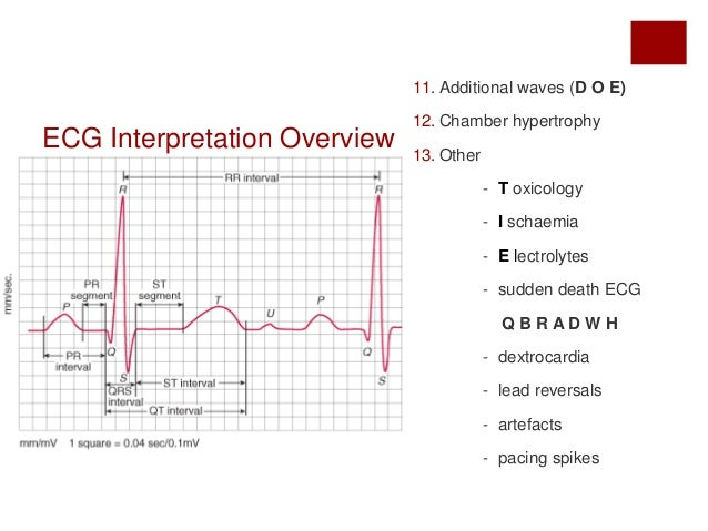 ecg interpreation Arrhythmias can also be classified in a general way according to their seriousness or prognosis this is a meaningful method for nurses caring for patients with acute myocardial infarction and the one we have found useful.
