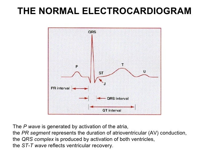 The P Wave Of An Ecg Represents