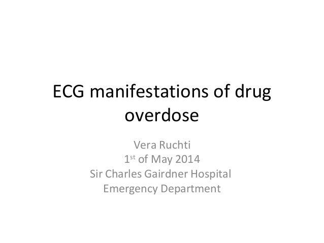 ECG manifestations of drug overdose Vera Ruchti 1st of May 2014 Sir Charles Gairdner Hospital Emergency Department