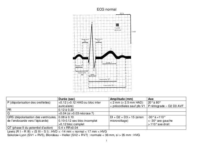 ECG normal                                          Durée (sec)                     Amplitude (mm)               AxeP (dép...
