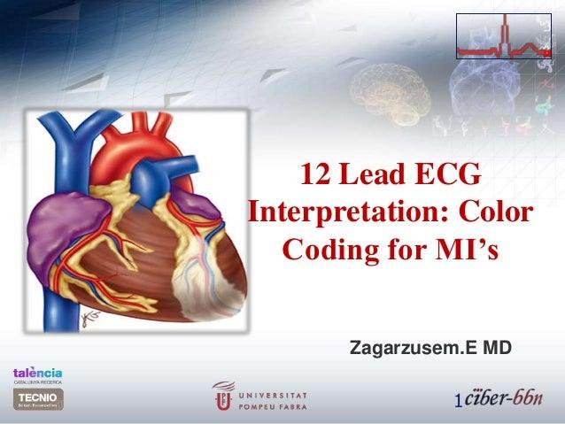 12 Lead ECG Interpretation: Color Coding for MI's Zagarzusem.E MD 1