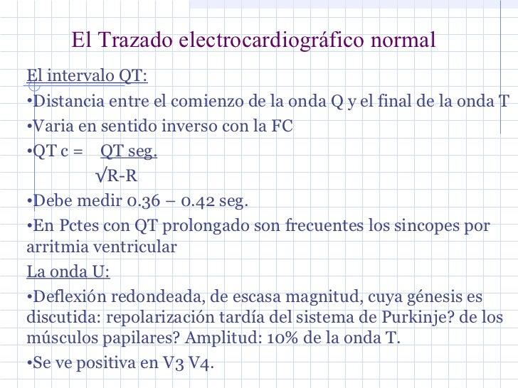 Ecg normal dr olivera parte 1 - Oliveras quart ...