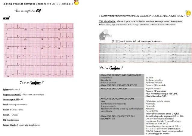 -1-Mais d'abords comment Reconnaitre un ECG normal ? *Voici un exemple d'un ECG normal : *Et si on l'analyser ? Rythme: ré...