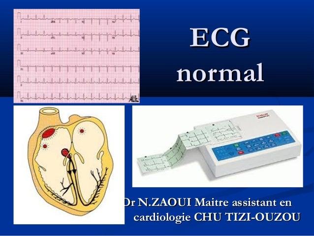 ECGECG normalnormal Dr N.ZAOUI Maitre assistant enDr N.ZAOUI Maitre assistant en cardiologie CHU TIZI-OUZOUcardiologie CHU...