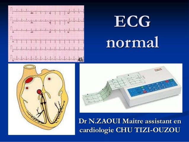 ECG normal Dr N.ZAOUI Maitre assistant en cardiologie CHU TIZI-OUZOU
