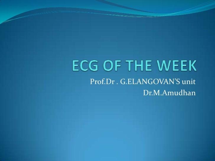 ECG OF THE WEEK<br />Prof.Dr . G.ELANGOVAN'S unit<br />Dr.M.Amudhan<br />