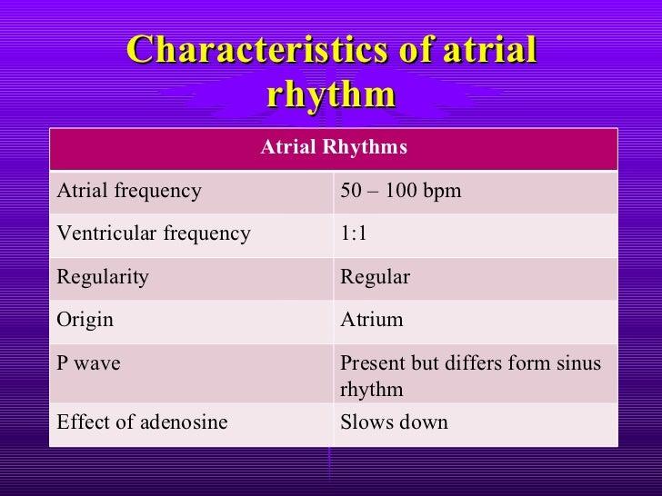 ECG: Coronary Sinus Rhythm