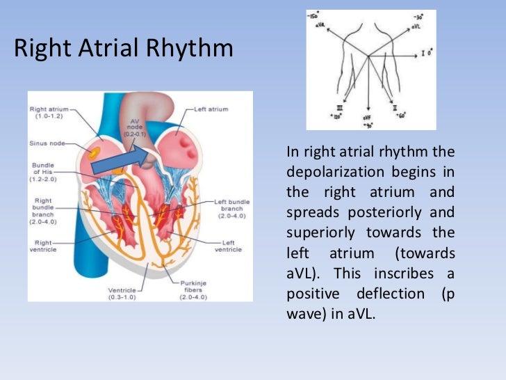 ECG: Atrial Rhythm