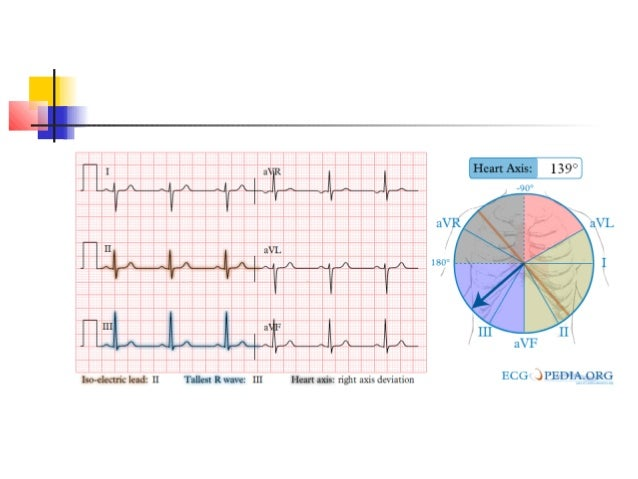 learn how to inetrpret ecg