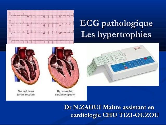 ECG pathologiqueECG pathologique Les hypertrophiesLes hypertrophies Dr N.ZAOUI Maitre assistant enDr N.ZAOUI Maitre assist...