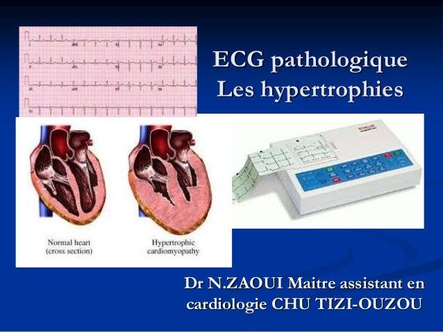 ECG pathologique Les hypertrophies Dr N.ZAOUI Maitre assistant en cardiologie CHU TIZI-OUZOU