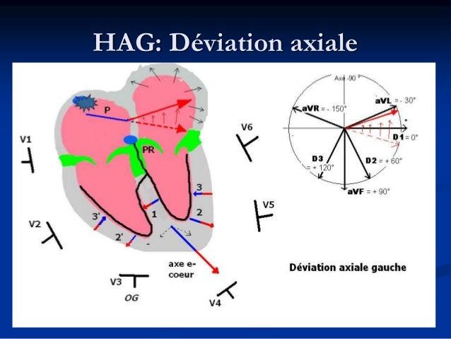 HAG: Aspect en V1