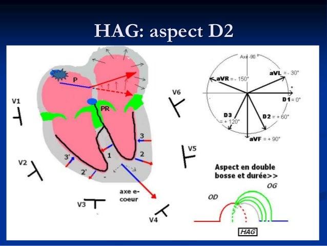 HAD: Augmentation de l'amplitude sans augmentation de la durée