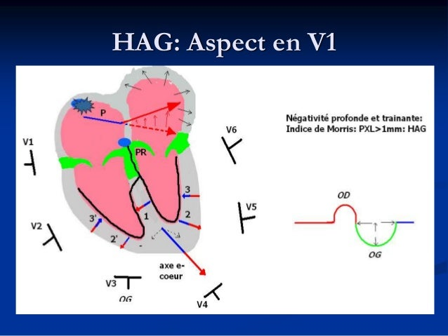 Récapitulatif: HAG, HAD, HBiA