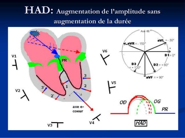 Quelques étiologies  HAG: RM IM CMH CM hypertensive FA… HAD: RT IT HTAP et CPC