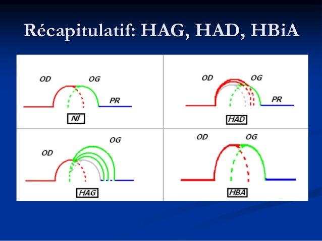 Les hypertrophies ventriculaires  Axe QRS Nl: 0-90°: Voir en D1 puis en aVF