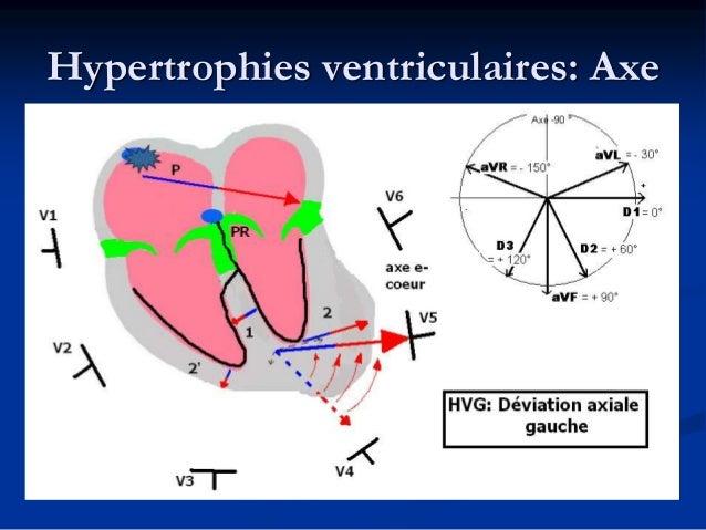 QRS: Amplitude: Indices  LEWIS: (RD1 + SD3) – (SD1+RD3): -14 à +17 >+17: HVG, <-14: HVD, Nl: Soit RAS soit H des 2 V  So...