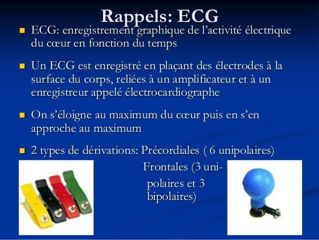 Rappels: ECG  ECG: enregistrement graphique de l'activité électrique du cœur en fonction du temps  Un ECG est enregistré...