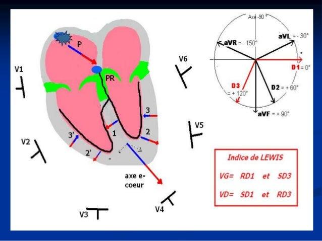 Hypertrophies ventriculaires: VG Etiologie  HVG: Hypertrophie primitive: CMH Hypertrophie secondaire à un obstacle d'éjec...