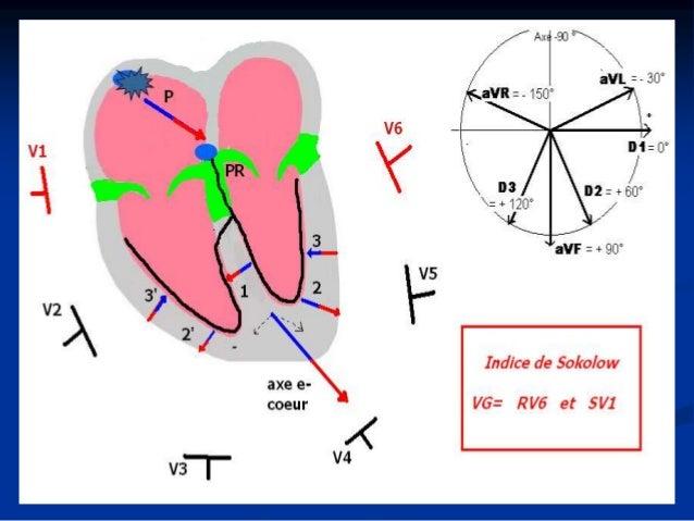 Hypertrophies ventriculaires: VG Etiologie  Dilatation: Primitive, valvulaire, rythmique, ischémique…….