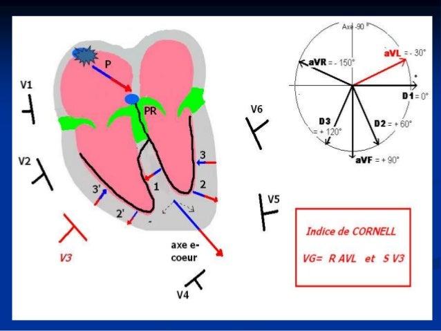 Hypertrophies ventriculaires: VD Etiologie  HVD: IT, HTAP, CPC, shunt G-D, DAVD….