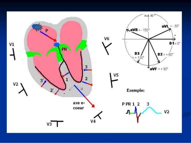 Les hypertrophies Hypertrophie à l'ECG: hypertrophie vraie ou dilatation