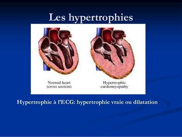 Les hypertrophies auriculaires Oreillette normale: Onde P normale: Axe entre 0 et 90°, Durée <0.12, amplitude<2.5mm