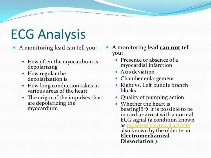 ecg ppp.pptx 2, Powerpoint templates