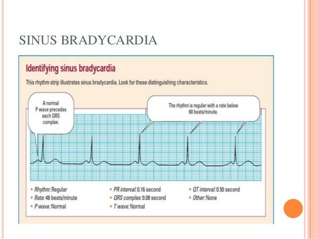 Basic of ECG and Easy Interpretation