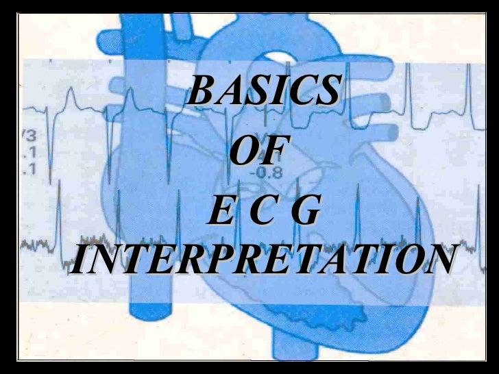 BASICS OF  E C G   INTERPRETATION