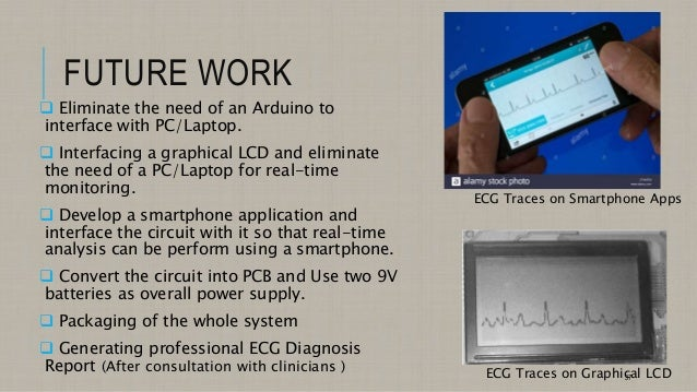 Senior Project Students' Presentation on ECG Monitoring