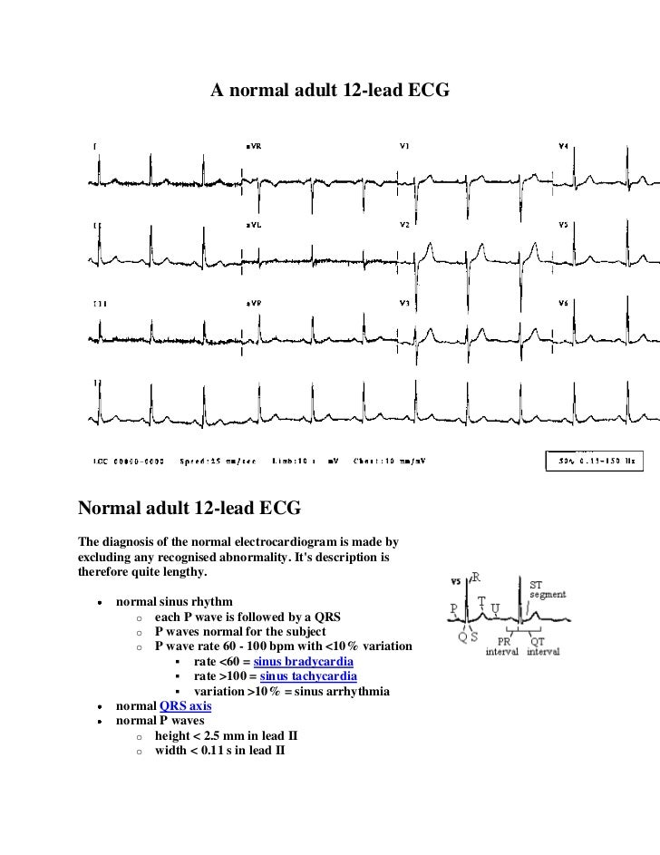 A normal adult 12-lead ECGNormal adult 12-lead ECGThe diagnosis of the normal electrocardiogram is made byexcluding any re...