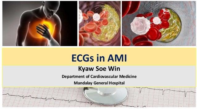 ECGs in AMI Kyaw Soe Win Department of Cardiovascular Medicine Mandalay General Hospital