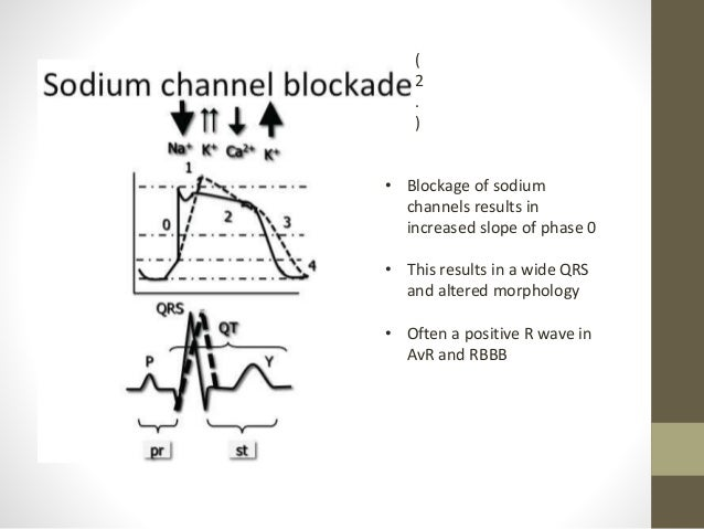 Toxicology and the ECG